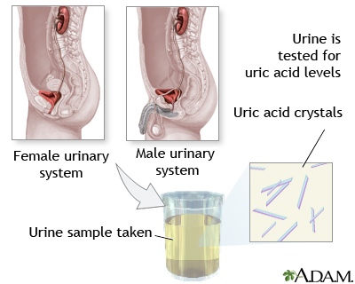 Uric acid test: MedlinePlus Medical Encyclopedia Image