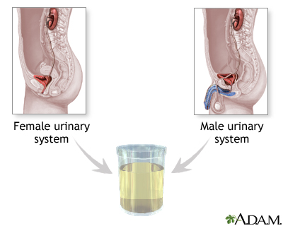 Urine sample: MedlinePlus Medical Encyclopedia Image