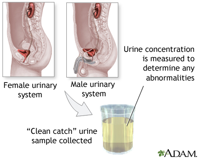 Urine concentration test