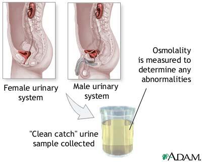 Osmolality test