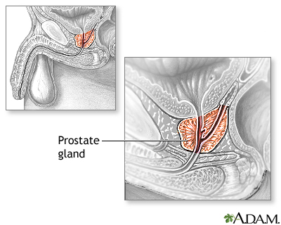Transurethral resection of the prostate (TURP) - Series—Normal ...