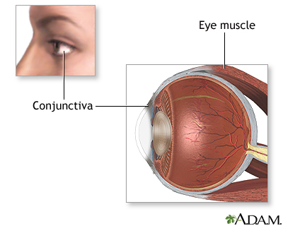Eye Muscle Repair Seriesnormal Anatomy Medlineplus Medical