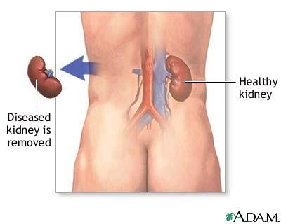 Kidney Medical Mind