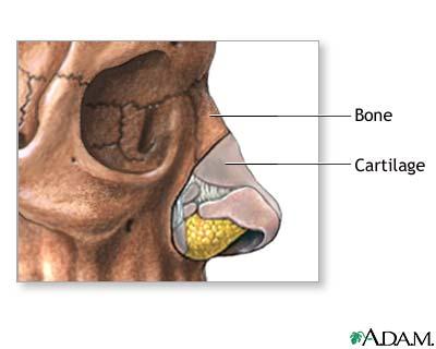 Nose surgery - series—Normal anatomy: MedlinePlus Medical Encyclopedia
