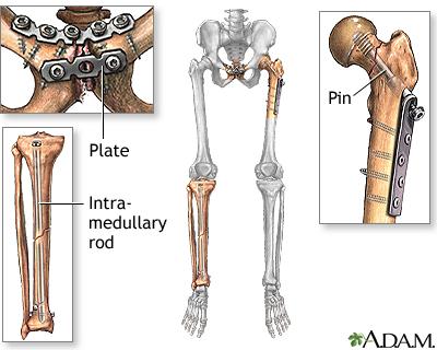 Bone Fracture Repair Series Medlineplus Medical