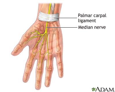 Carpal Tunnel Repair Seriesnormal Anatomy Medlineplus Medical