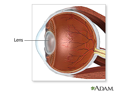 Cataract surgery - series - Normal anatomy