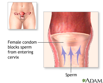 Female condom at the