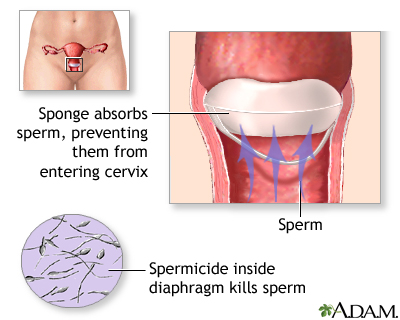 Properties vaginal itching and sperm are mistaken