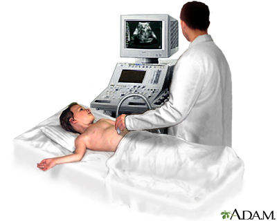 A Picture of an Ultrasound