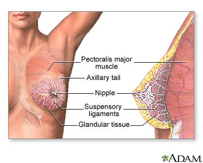 Swollen breast glan