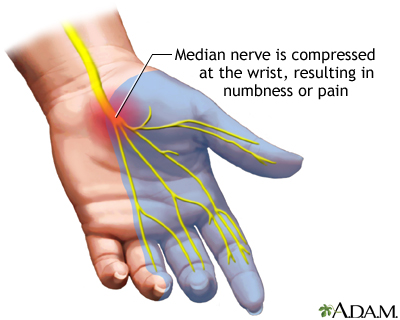 Carpal tunnel syndrome: MedlinePlus Medical Encyclopedia Image