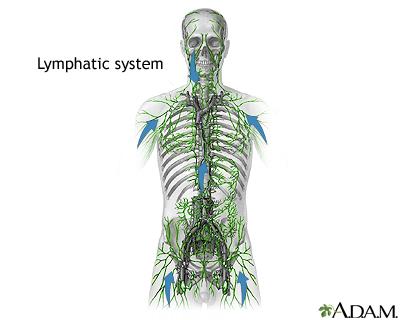 Hodgkin lymphoma: MedlinePlus Medical Encyclopedia