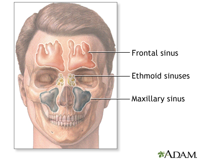 Sinuses: MedlinePlus Medical Encyclopedia Image