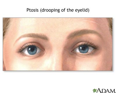 Ptosis, drooping of the eyelid: MedlinePlus Medical Encyclopedia Image