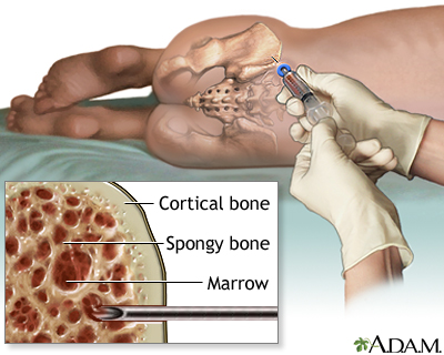 Bone marrow aspiration