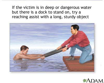 Drowning rescue, reaching assist: MedlinePlus Medical Encyclopedia ...
