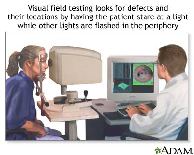 Visual field test: MedlinePlus Medical Encyclopedia Image