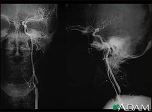 Carotid stenosis, X-ray of the left artery