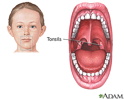 Tonsillectomy Seriesnormal Anatomy Medlineplus Medical Encyclopedia