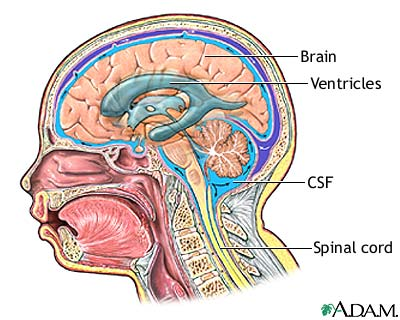 Ventriculoperitoneal Shunt Seriesnormal Anatomy Medlineplus