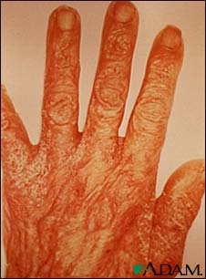 Scabies rash and excoriation on the hand