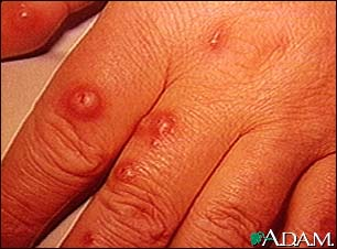 Cryptococcus, cutaneous on the hand