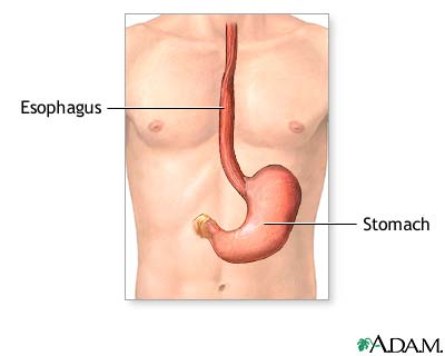 Gastrostomy tube placement - series