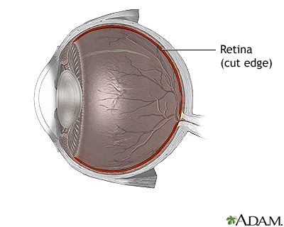 Retinal detachment repair - normal anatomy