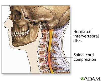 Spinal surgery - cervical - series—Indications: MedlinePlus Medical ...