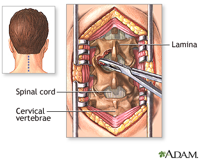 La aplicación del ungüento traumel a la osteocondrosis