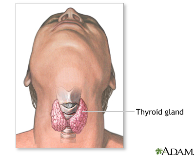 Thyroidectomy - Series