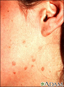Warts - flat on the cheek and neck