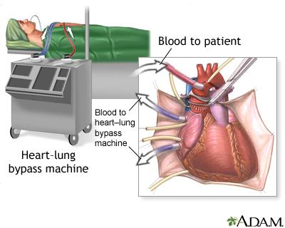 Heart lung transplant seriesprocedure part 1 medlineplus overview heart lung transplant ccuart Choice Image