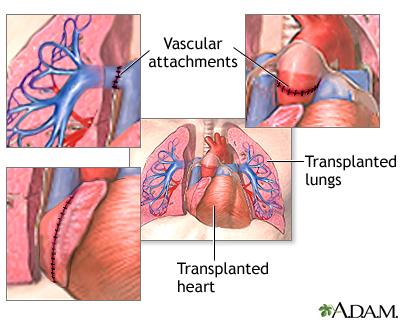 Heart lung transplant seriesprocedure part 2 medlineplus overview ccuart Choice Image