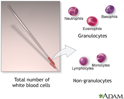 white blood cell count - series—indication: medlineplus medical, Skeleton