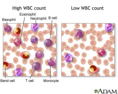 white blood cell count - series—results: medlineplus medical, Skeleton