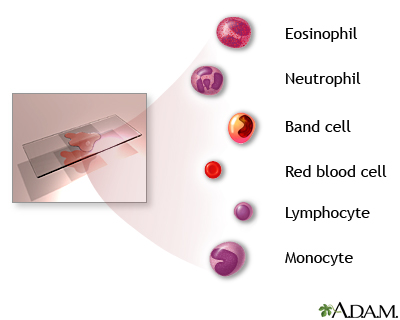 Complete blood count - series - Indication