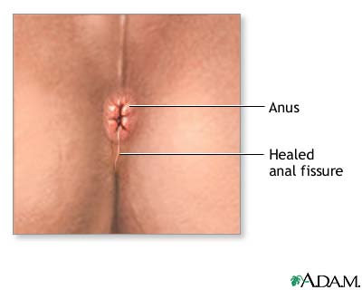 for Anastesia fissure surgery anal used