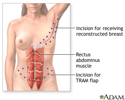 double mastectomy reconstruction photos