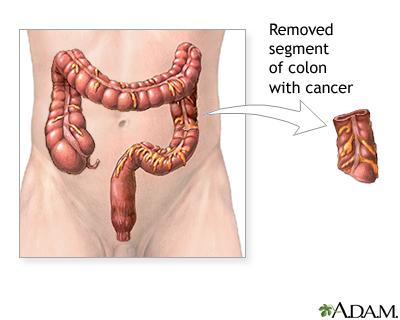 Colon Cancer Series Procedure Medlineplus Medical Encyclopedia