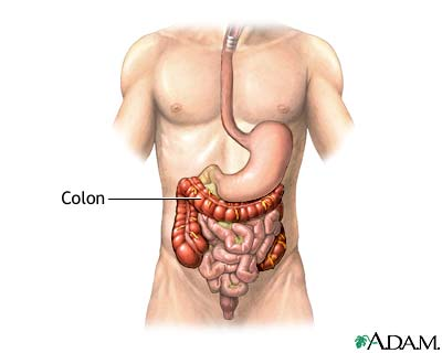 Colon diverticula - series—Normal anatomy: MedlinePlus Medical ...