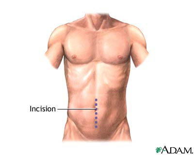 Incision