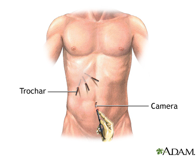 Laparoscopic surgery - series - Incision