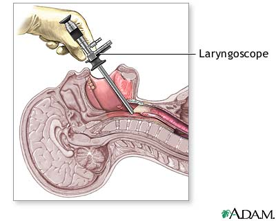 laryngoscopy. overview. laryngoscopy