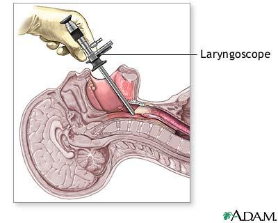 laryngoscopy. overview. laryngoscopy