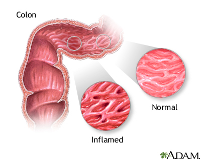 Inflammatory Bowel Disease Seriesindications Medlineplus Medical