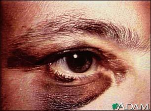 black eye medical term