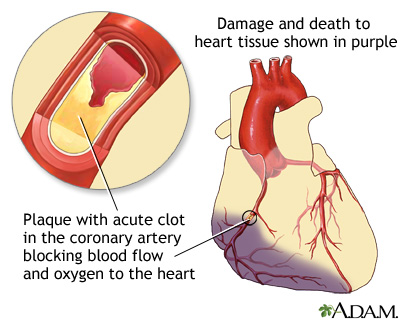 A report on heart attack and its causes