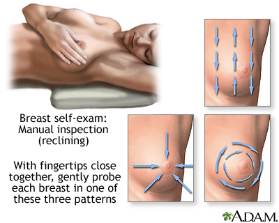 Breast self-exam: MedlinePlus Medical Encyclopedia Image